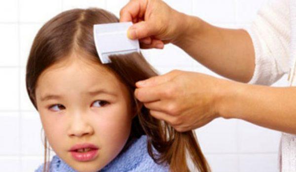 Los piojos no se deben a la falta de higiene, e incluso estos prefieren el pelo limpio