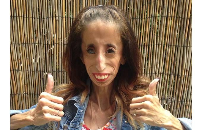Lizzie Velásquez ha publicado ya tres libros de autoestima y positividad y es habitual en las conferencias TEDx.
